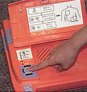 AED-9100 통전 버튼을 누르는 사진