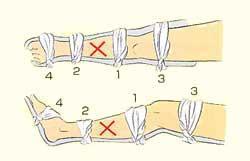 Figura arreglada del pie