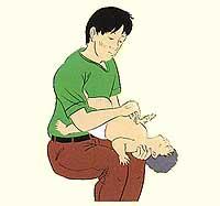 Figura de la resurrección cardiopulmonar del lactante