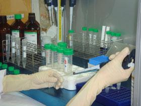 DNA의 추출의 사진