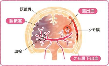 Illustration of stroke onset part