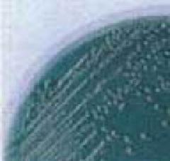 Comunidades do parahaemolyticus de Vibrio que cresceu ao agar de TCBS